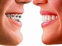 Противопоказания к ортодонтическому лечению